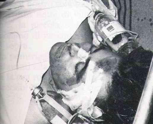 Il brigatista Prospero Gallinari, ferito nello scontro a fuoco in cui venne catturato il 24 settembre 1979.